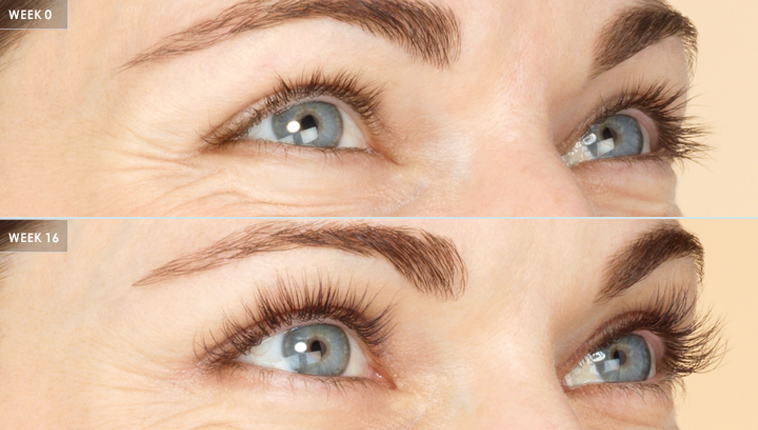 latisse eyelash treatment before after in asheville